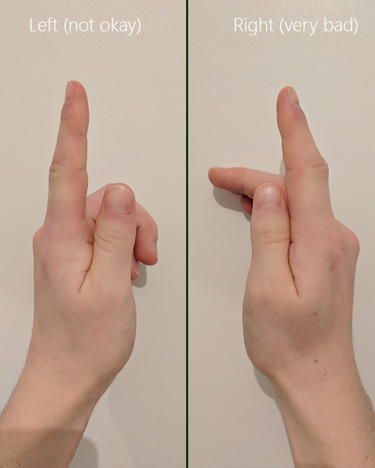 Comparison of left and swollen right finger